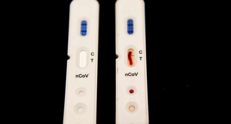 La prueba rápida detecta los anticuerpos que genera el cuerpo cuando ya comienza la infección por el Covid-19. (Foto: Robin UTRECHT / ANP / AFP)