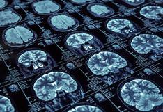 COVID-19 reduce el volumen de materia gris en el cerebro, revela estudio