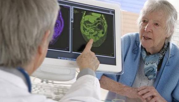 Alzheimer . (Foto: Difusión)