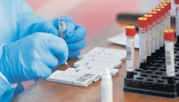 El INS realiza el procesamiento de muestras para conocer en qué lugares está presente la variantes brasileña del COVID-19. (GEC)